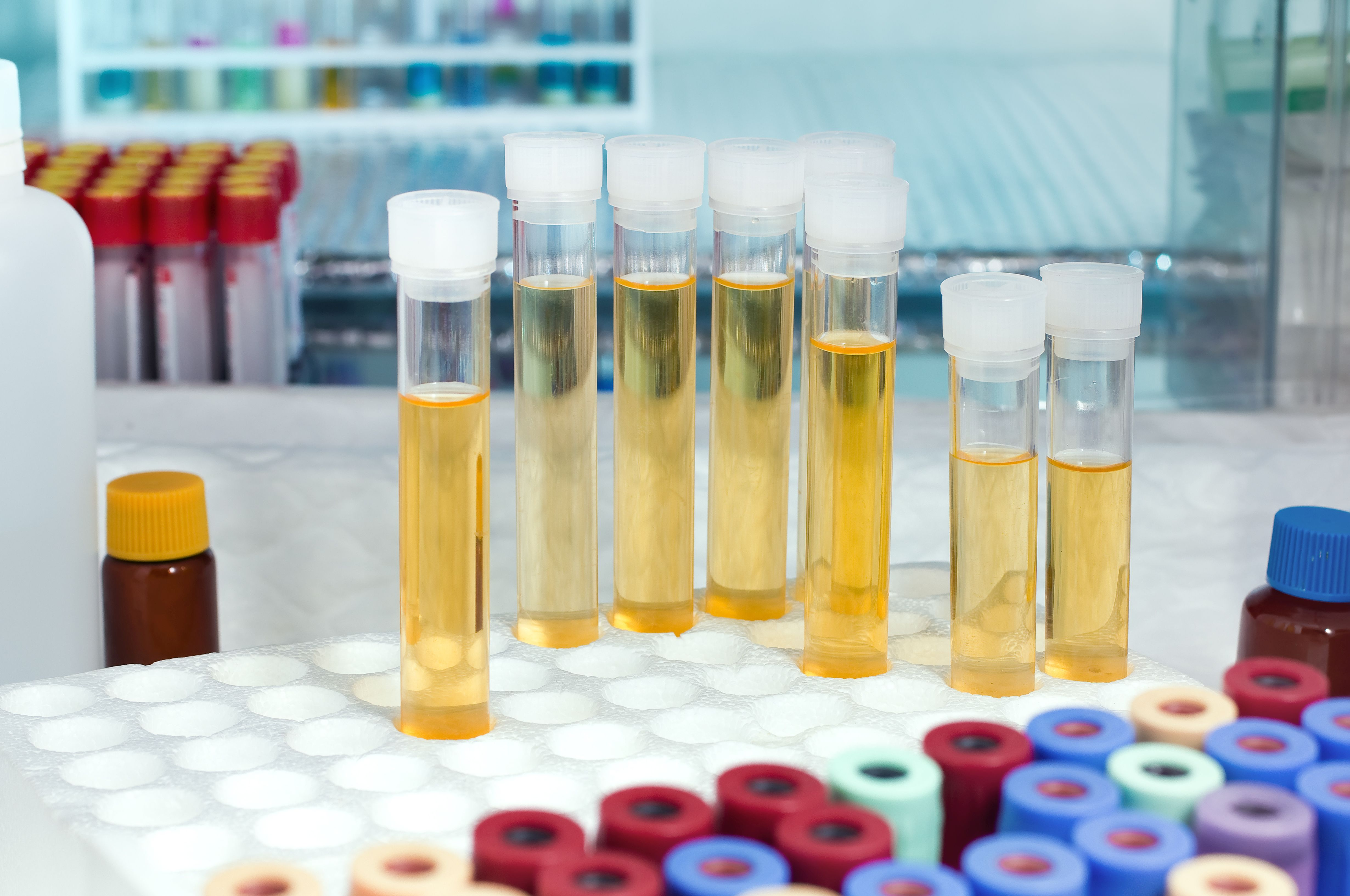 Urine DNA Test Shows Potential for Early Bladder Cancer Detection ...