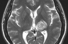 MRI showing tapeworm in patient brain.