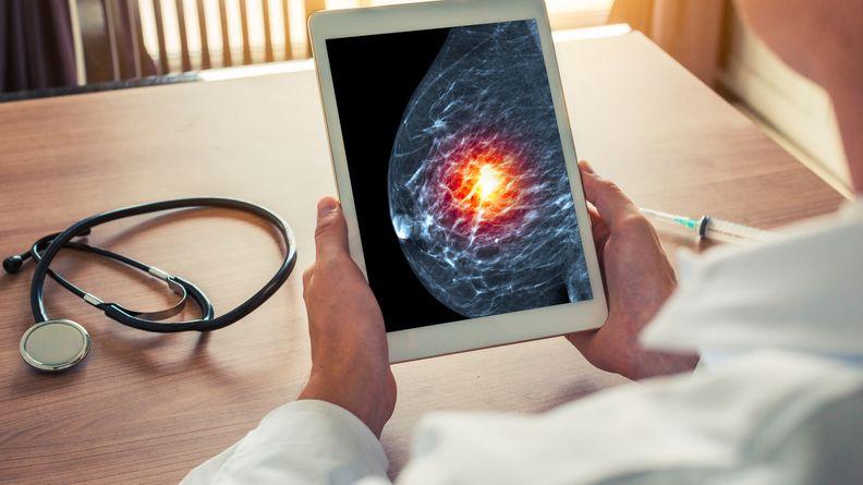 breast cancer.jpeg